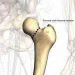 femoral-neck-fracture-anatomy