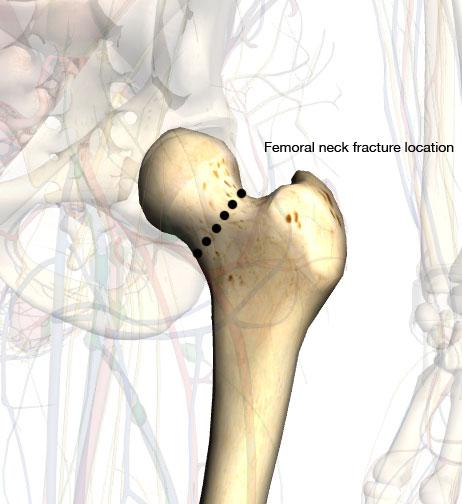 Anatomy of neck of femur