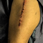 hip surgery incision