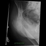 preoperative xray inter-trochanteric femur fracture